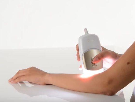 epilation-bras-lumiere-pulsee